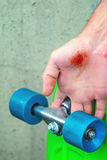 Injuries in extreme sports Stock Photography