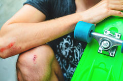 Injuries in extreme sports Stock Photos