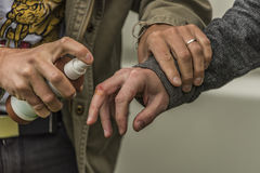 Injury of hand with disinfectant spray. And another hand Royalty Free Stock Photo