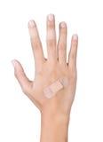Injury hand Stock Photos