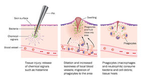 Injury and inflammation. The process of injury, resulting inflammation and resolution Stock Images