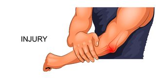 Injury male elbow. Vector illustration of an injured male elbow Stock Images