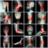 Inkasowy istoty ludzkiej złącze, artretyzm i uderzenie Zdjęcia Stock