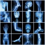 Inkasowy istoty ludzkiej złącze (czaszki szyi ramienia klatki piersiowej thorax ramienia ręki łokcia przedramienia nadgarstku ręk Zdjęcie Royalty Free