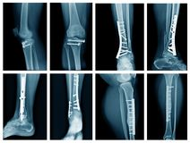 Inkasowy nogi promieniowanie rentgenowskie fotografia royalty free