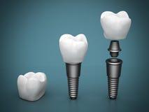 Innesti dentali Fotografia Stock Libera da Diritti