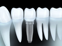 Innesto dentale illustrazione di stock