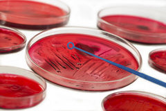 INOCULATION MICROBIOLOGY Royalty Free Stock Photography