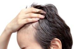 Inquiétude chauve d'homme ou de femme au sujet de son moins de délié image libre de droits