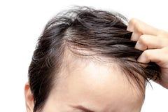 Inquiétude chauve d'homme ou de femme au sujet de son moins de délié photo stock