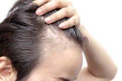 Inquiétude chauve d'homme ou de femme au sujet de son moins de délié photos stock