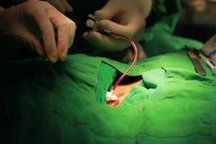 Inre catheterization för strup- åder Arkivfoto