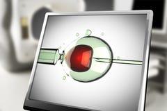 Insémination artificielle sur le moniteur dans le laboratoire Photographie stock