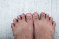 Insect bites on the feet, allergic, Symptoms scratching itchy Stock Photo