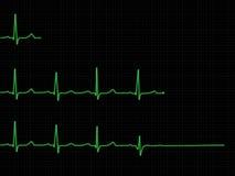 Insieme di ECG Immagini Stock