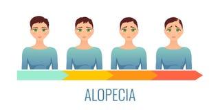 Insieme di fasi femminile di alopecia Immagini Stock