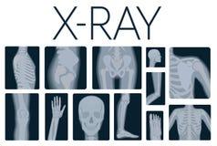 Insieme realistico del collage di vettore di qualità estrema di molti colpi dei raggi x Raggi x multipart della gente adulta illustrazione vettoriale