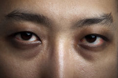 Insomnia. Close up male eyes.Insomnia in late night Stock Photo
