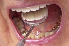 Inspection de dents photos libres de droits