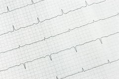 Inspection of heart. Stock Photos