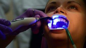 Installando i sostegni sui denti, la ragazza nell'ufficio dentario video d archivio