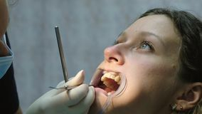 Installation and fixation of the metal bracket system. Visit to the dentist orthodontist, correction of malocclusion.  stock footage