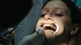 Installation and fixing of metal braces. Visit to the dentist orthodontist, correction of malocclusion close-up.  stock video