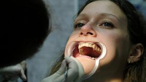 Installation and fixing of metal braces. Visit to orthodontist dentist, bite correction close-up.  stock video