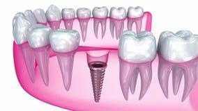 Installazione dell'impianto del dente, medicamente accurata illustrazione di stock