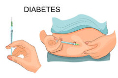 Insulin injection in a belly. Vector illustration. Stock Images
