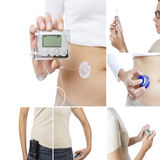Insulin pump collage. Consisting of six pictures: hand holding an insuline pump, insertion system of the infusion set, filling the reservoir of a insulin pump Royalty Free Stock Photos