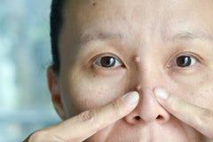Intento asiático de la mujer para exprimir espinillas del acné de la nariz Fotografía de archivo libre de regalías