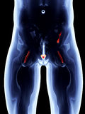 Internal Organs - Prostate Stock Photography