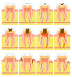 Internal structure of tooth. Some illustrations of an internal structure of tooth Royalty Free Stock Photography