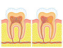 Internal structure of tooth. Two illustrations of an internal structure of tooth Stock Image