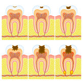 Internal structure of tooth. Some illustrations of an internal structure of tooth: caries and decay Stock Photography
