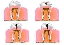 Structure of the tooth Royalty Free Stock Photo