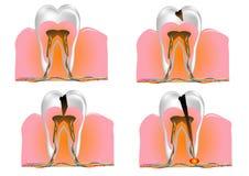 Structuur van de tand vector illustratie