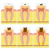 Interne structuur van tand Stock Fotografie