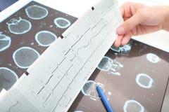 Interpretación de exámenes médicos Fotografía de archivo