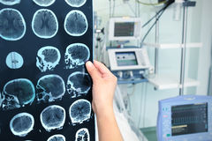 Interpretación de la tomografía Fotografía de archivo