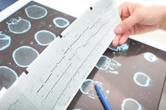 Free Interpretation Of Medical Tests Stock Photography - 36774062