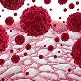 Interstício e câncer Imagens de Stock