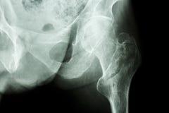 Intertrochanteric fracture left femur stock photo