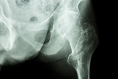 Intertrochanteric fracture left femur Stock Photo