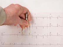 Intervalos del doctor Measuring EKG con los calibradores Fotografía de archivo libre de regalías