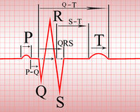 Intervals, compex of  ECG. Complex of ECG on thermal paper, with the notation of teeth and spacing, illustration Royalty Free Stock Photo