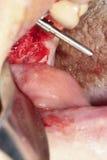 Intervento chirurgico sui molari Innesto dentale fotografia stock libera da diritti