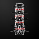 Intervertebral discs. 3d render human intervertebral discs - back view Royalty Free Stock Image