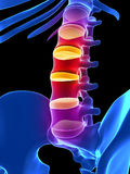 Intervertebral disks Stock Image